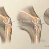 Tibeal Plateau Leveling Osteotomy-TPLO