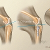 Tibeal Plateau Leveling Osteotomy-TPLO